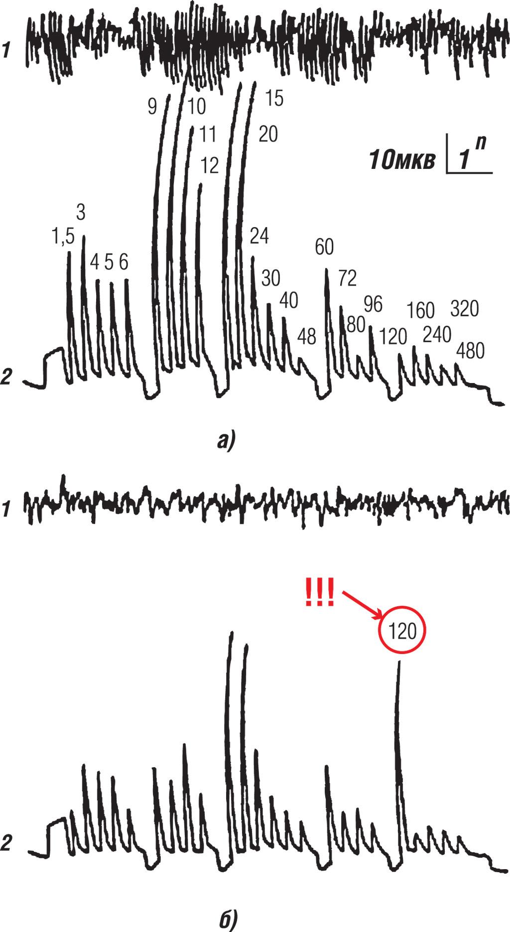 Рис. 1. ЭЭГ человеческого мозга в затемненной комнате (а), ЭЭГ человеческого мозга в комнате, освещенной лампами, с частотой пульсации светового потока 120 Гц